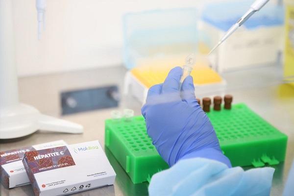 un test 100% marocain pour diagnostiquer l'hépatite C